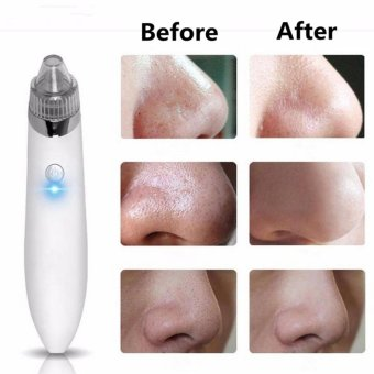 Harga Microdermabrasion Vacuum Suction Pore Cleaner Comedo Blackhead Remove Machine White - intl