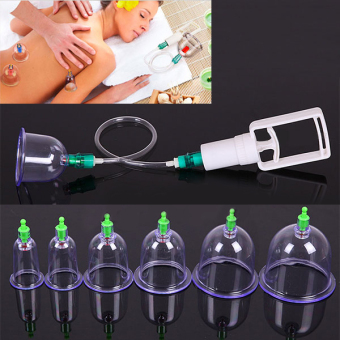 Harga Healthy 12 Cups Acupuncture Traditional Medical Vacuum Cupping Suction Therapy
